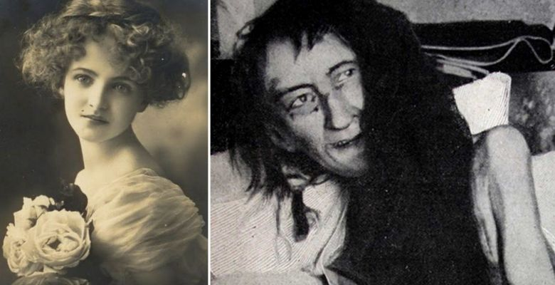 This Woman's Family Shockingly Locked Her Away In A Dungeon For 25 Years